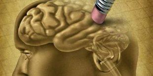 За больными Альцгеймером